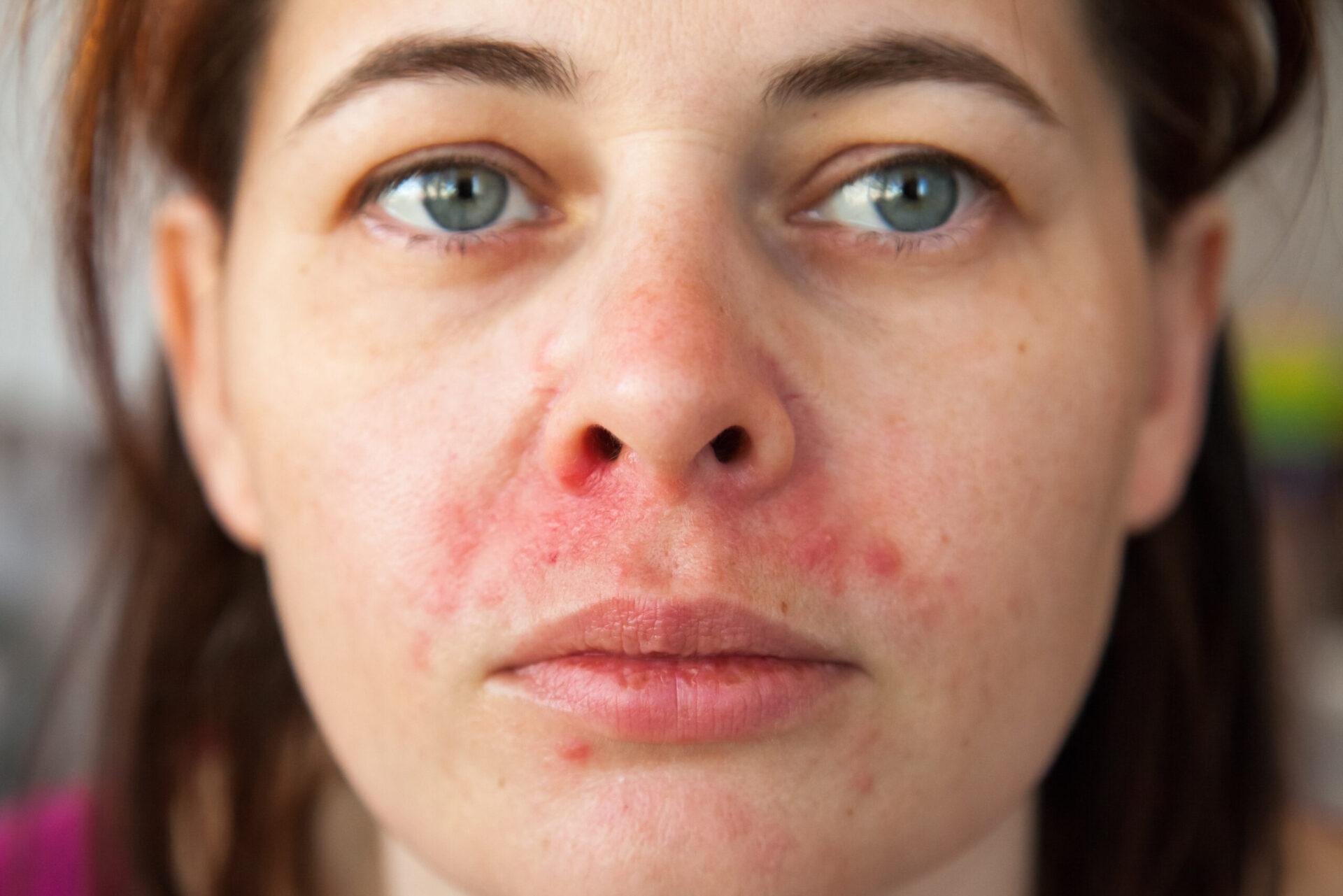 Oxilver - Perioralni dermatitis